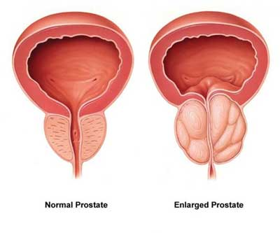 TURP Surgery - BPH/Enlarged Prostate